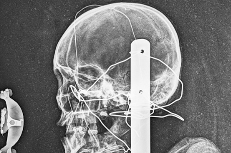 An X-ray of the mummy's head.