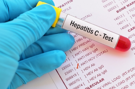 Vile used for hepatitis c test
