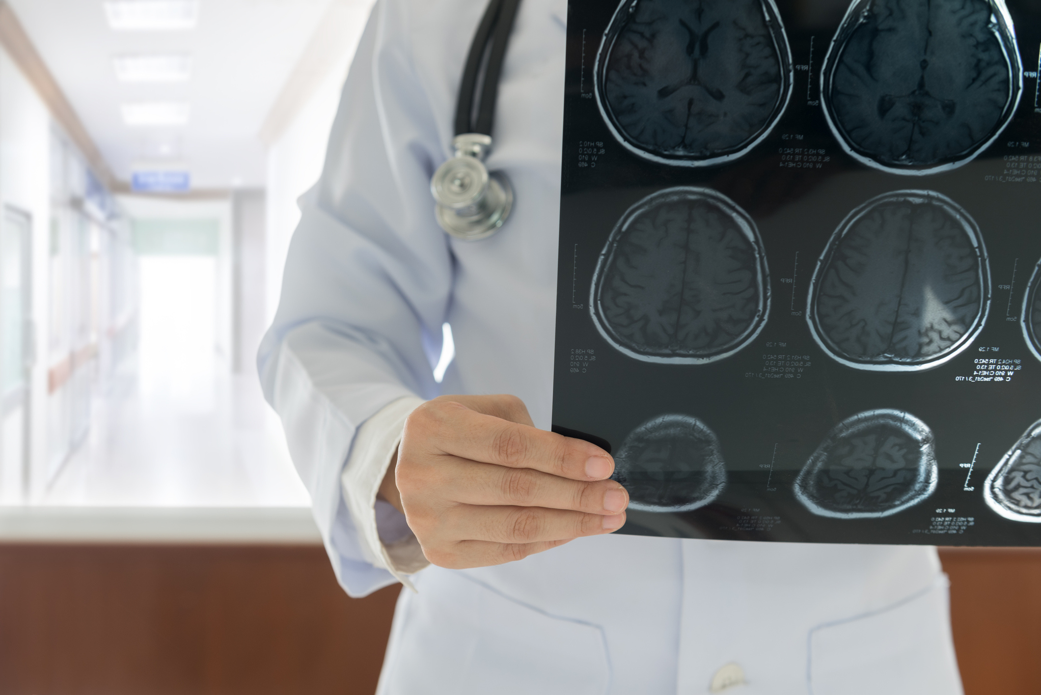 Doctor wearing white coat examines brain images on an X-ray