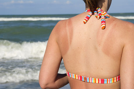 A young woman with sunburn on her back at the beach.