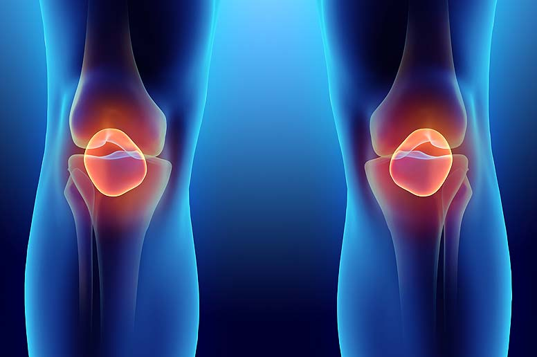 Rheumatology - close up graphic of knees
